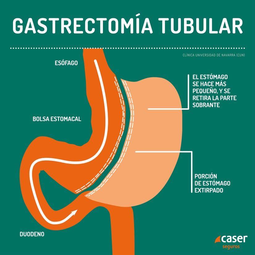 Técnica gastrectomía tubular para la obesidad