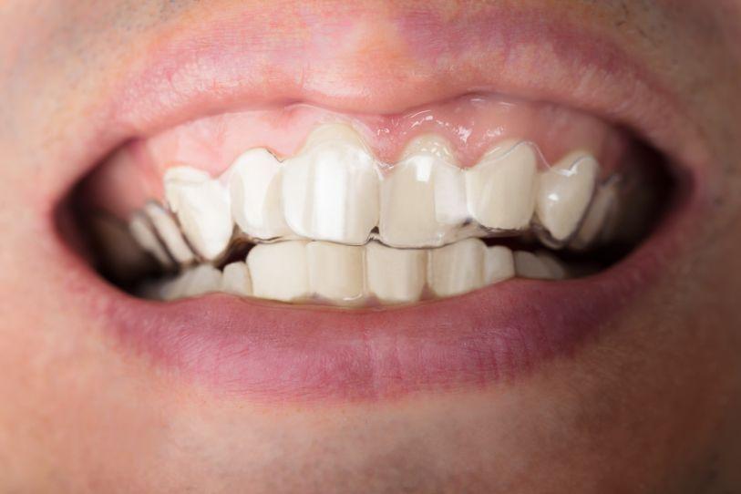 Ortodoncia invisible para dientes