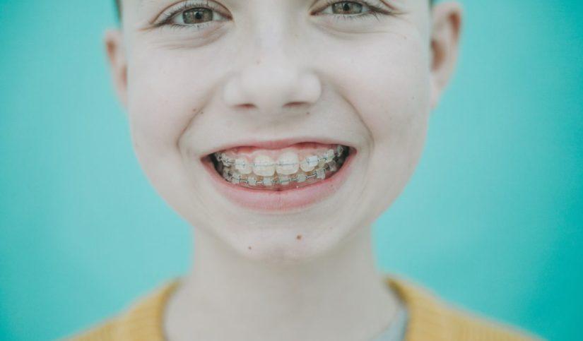 maloclusion dental